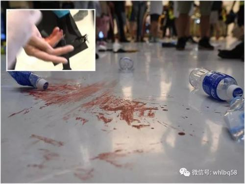 Scene of HK police officer with cut off finger by puppet terrorist (1)